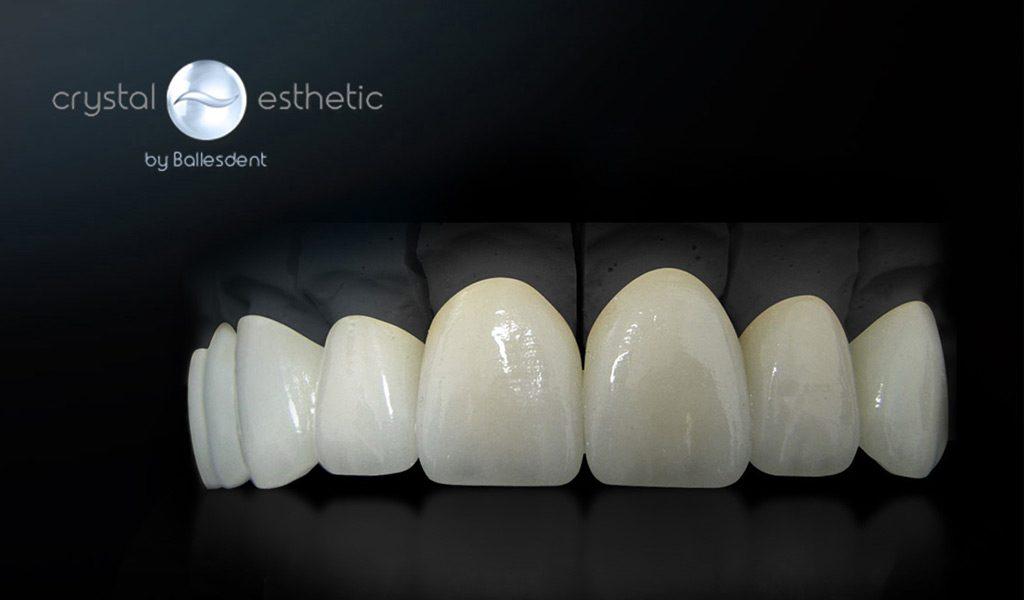 Estética dental Badalona