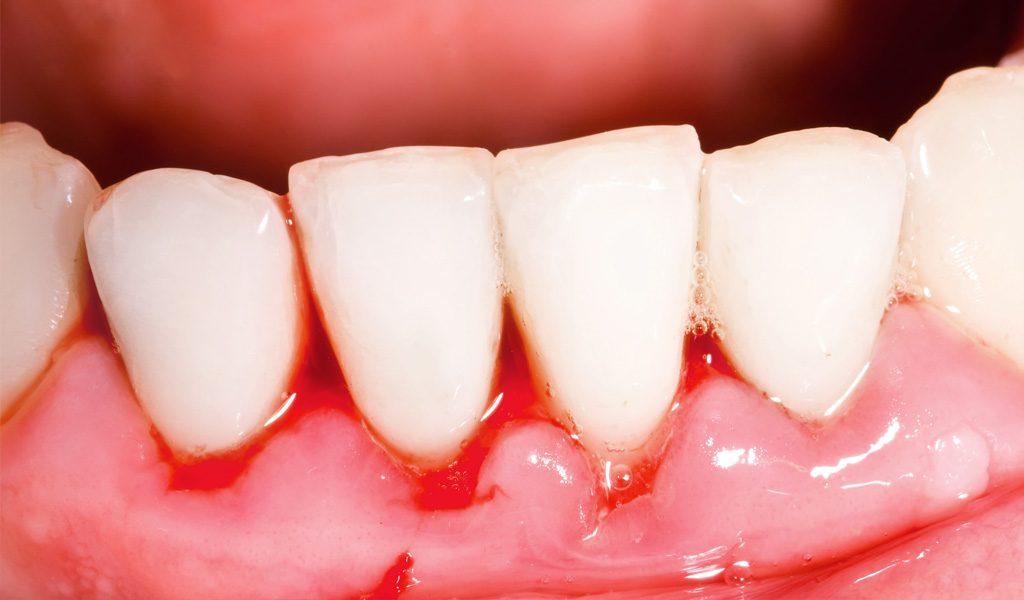 urgencias dentales en Badalona