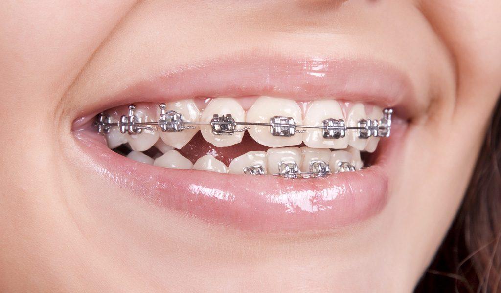 ortodoncia en Badalona