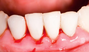 higiene dental en Badalona