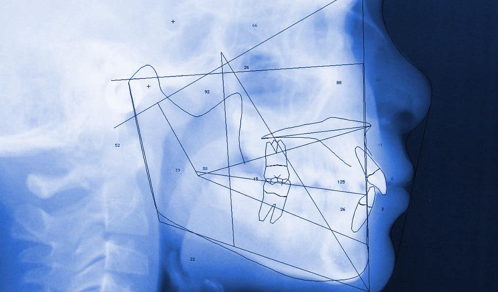 ortodoncia invisible en Badalona