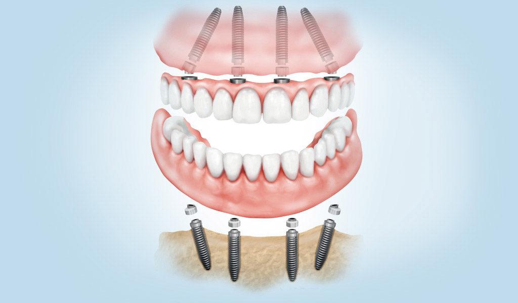 Dentadura fijada con implantes dentales en Badalona